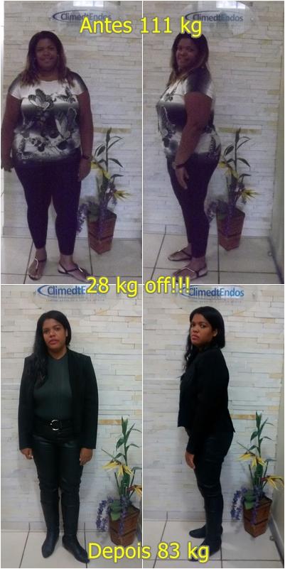 Antes e Depois Cinthia Vianna
