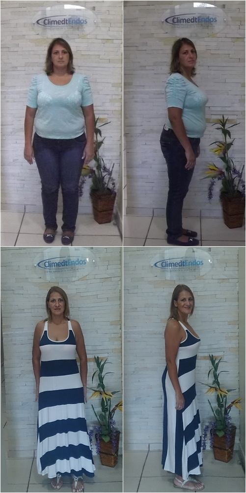 Antes e Depois Lene