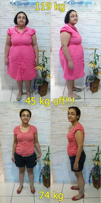 Antes e Depois Louise Marie