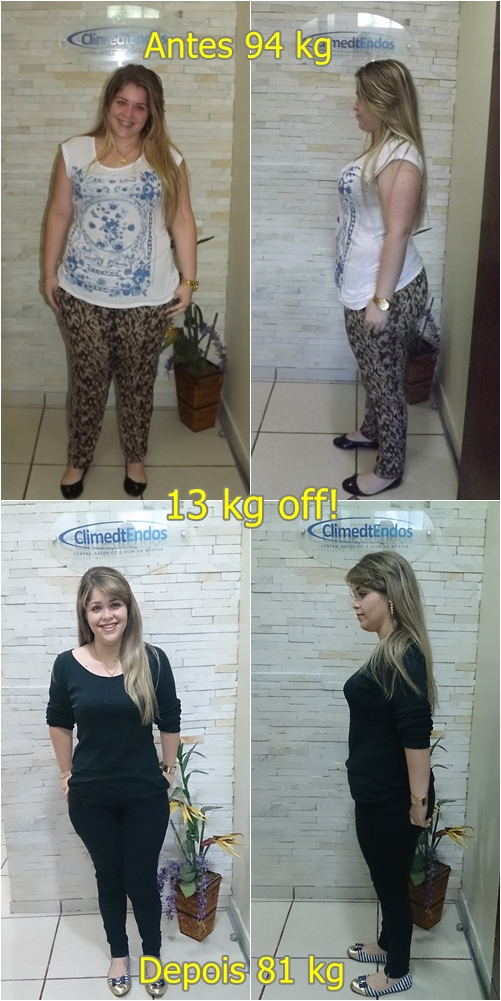 Antes e Depois Rafaela Cavalcante - final