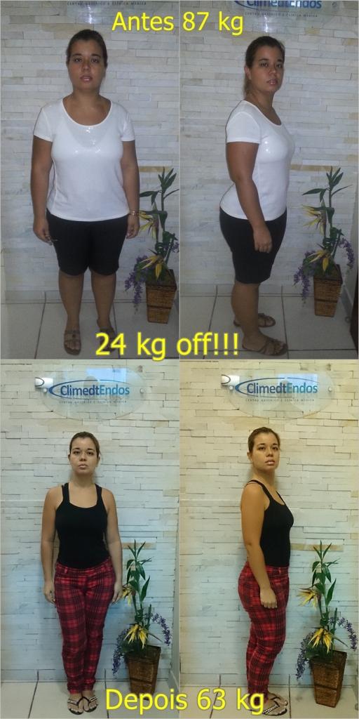 Antes e Depois Veronica Dias dos Santos