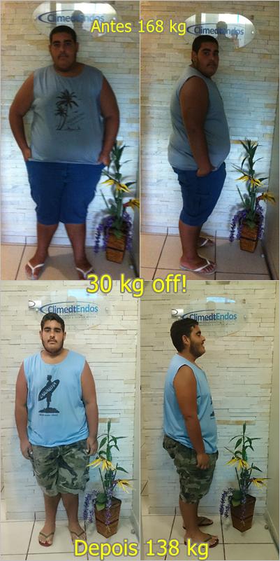 Marcelo de Lavinas Antes e Depois final