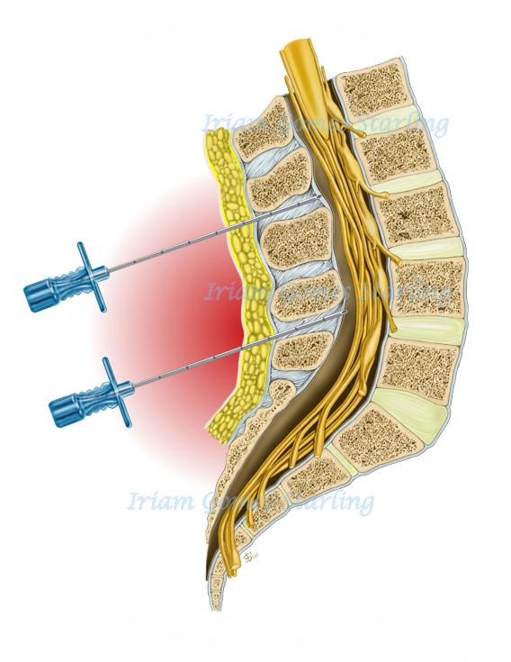 anestesia-raquidiana-e-peridural