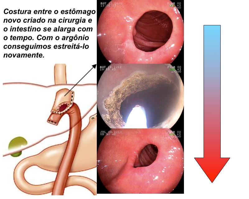 figuraArgonio1