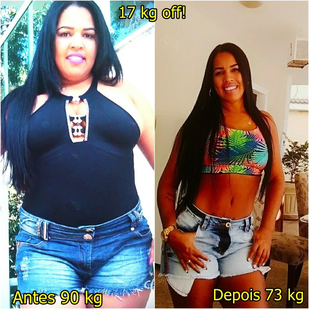 Perdida de peso con bypass gastrico
